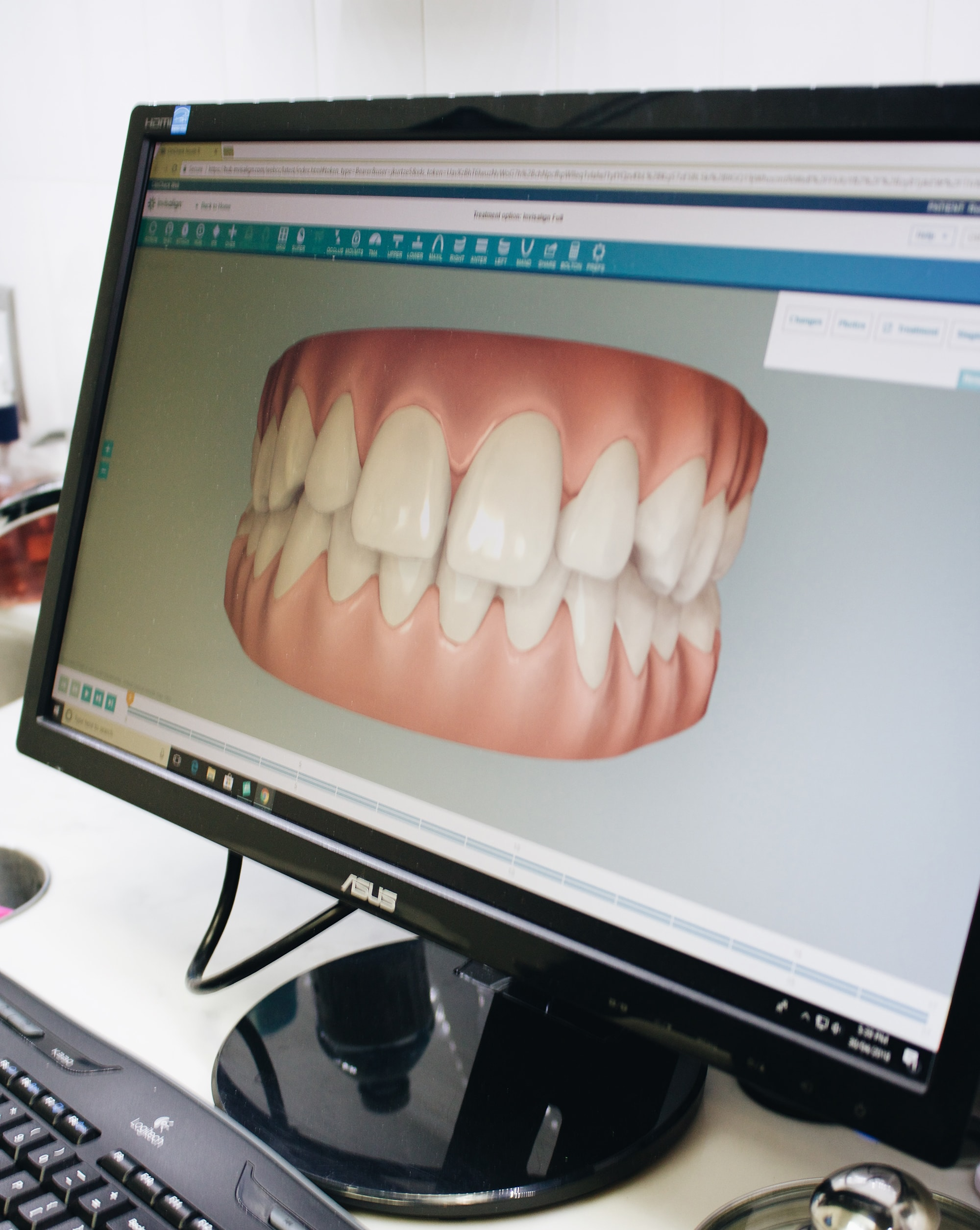 Invisalign movement computer scan